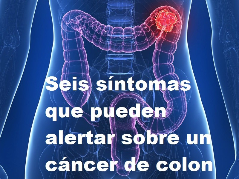 cancer de colon causas sintomas