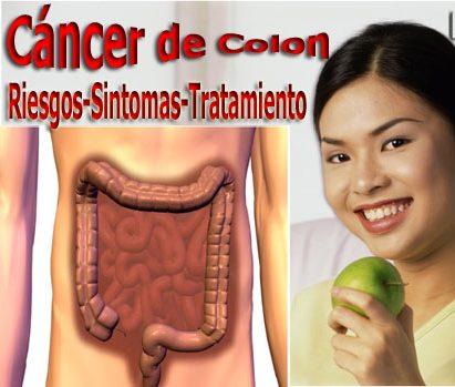 los síntomas de cáncer de colon