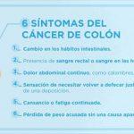 Síntomas de cáncer de colon