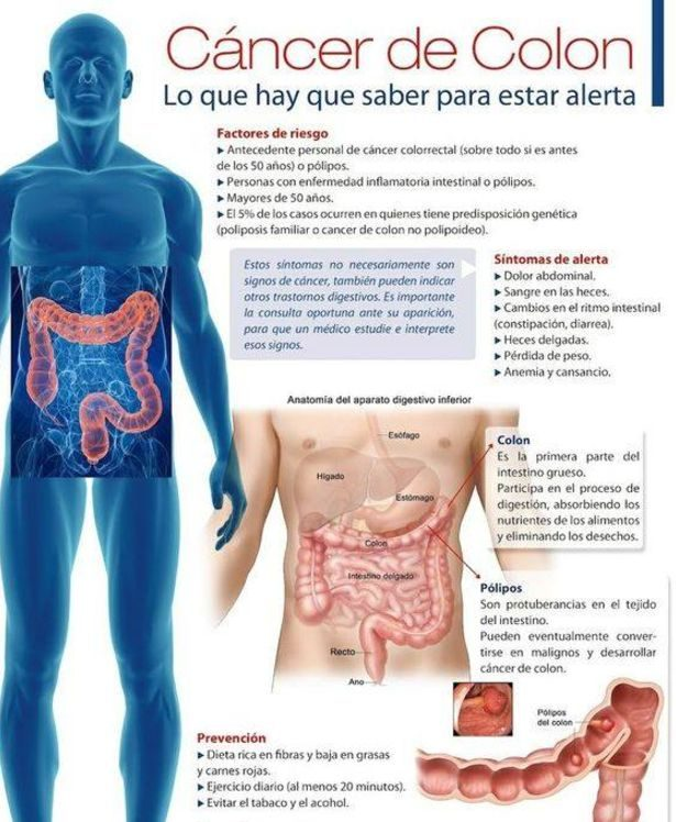 síntomas cáncer de colon en mujeres sintomas cancer de colon y recto en mujeres sintomas cancer de colon en hombres sintomas cancer de colon y recto sintomas cancer de colon avanzado sintomas cancer de colon y recto en hombres sintomas cancer de colon terminal sintomas cancer de colon gases sintomas cancer de colon sintomas cancer de colon aecc sintomas de cancer al colon sintomas de cancer al colon en mujeres sintomas de cancer al colon y recto sintomas de cancer al colon terminal sintomas de cancer al colon en jovenes sintomas de cancer al colon en niños sintomas de cancer de colon avanzado sintomas al cancer de colon sintomas cancer de colon en mujeres sintomas de cancer de colon en bebes sintomas tumor benigno colon buscar sintomas de cancer de colon sintomas de cancer de colon con metastasis en higado sintomas de cancer de colon sintomas del cancer de colon cuales son cancer de colon causas sintomas y tratamiento cancer de colon causas sintomas tratamiento y prevencion sintomas de cancer de colon tiene cura cancer de colon ciego sintomas sintomas claros cancer de colon cancer de colon causas sintomas sintomas cancer de colon descendente sintomas cancer de colon diarrea sintomas de cancer del colon sintomas de cancer de colon derecho e izquierdo sintomas de cancer del colon izquierdo sintomas cancer d3 colon sintomas cancer de colon en ancianos sintomas cancer de colon etapa 4 primeros sintomas en cancer de colon signos y sintomas en cancer de colon cancer de colon sintomas e imagenes sintomas cancer de colon foro sintomas cancer de colon fase 1 sintomas de cancer de colon fotos sintomas de cancer de colon femenino sintomas cancer colon fiebre sintomas cancer colon fase terminal sintomas frecuentes cancer de colon sintomas fisicos cancer de colon cancer de colon fase 4 sintomas sintomas de cancer de colon en gatos sintomas graves de cancer de colon sintomas generales del cancer de colon cancer de colon grado 4 sintomas google sintomas de cancer de colon sintomas