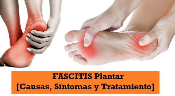sintomas de la fascitis plantar