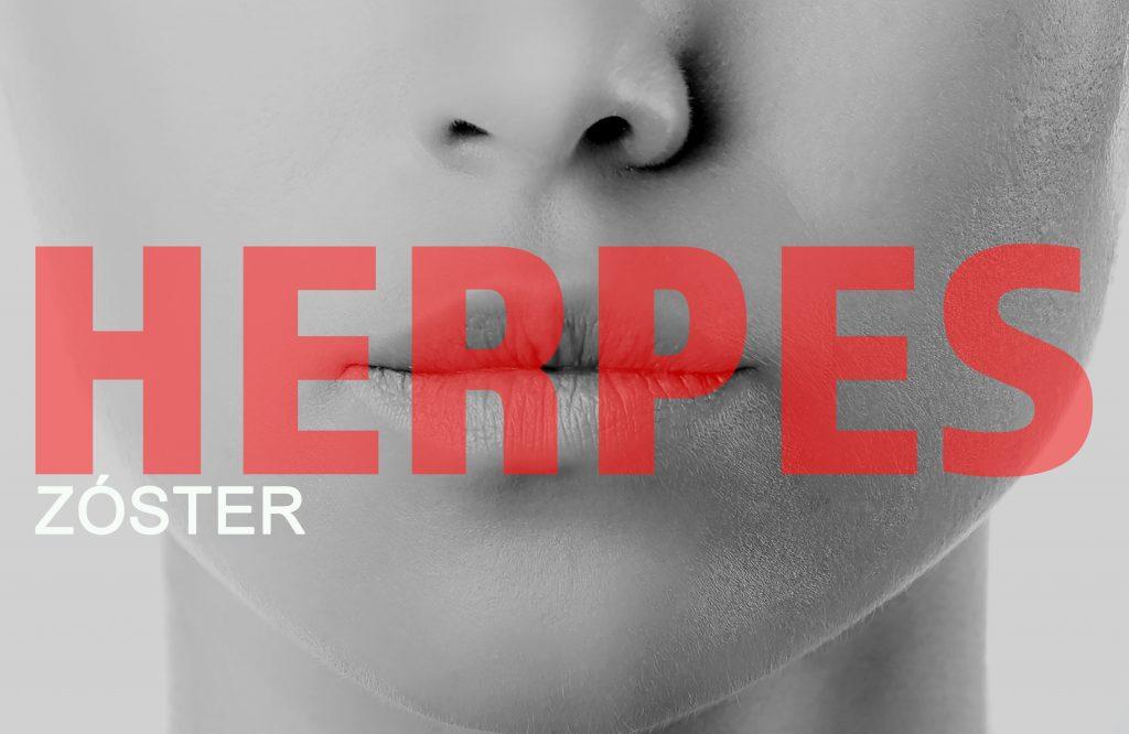 cuáles son los síntomas de la herpes zóster