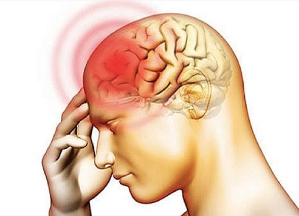 sintoma de meningitis viral
