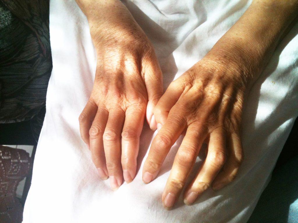 sintomas d ela artritis