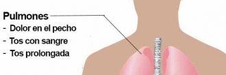 Síntomas tuberculosis