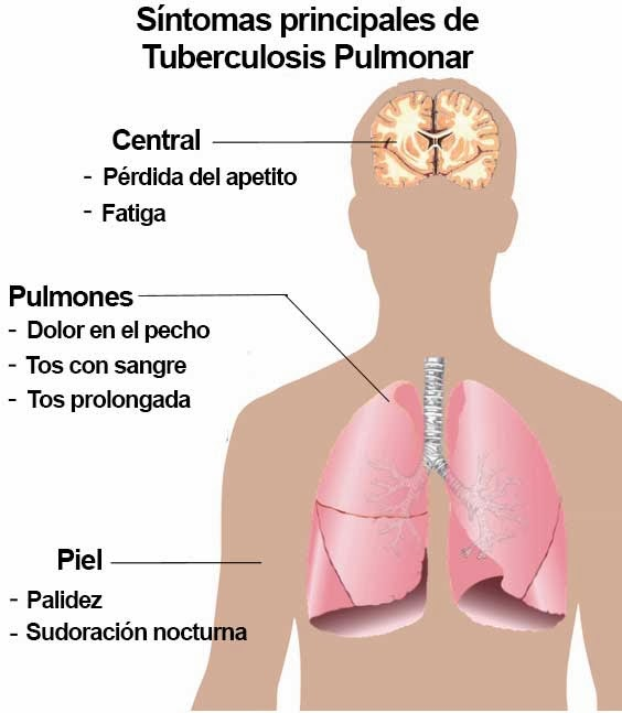 signos y sintomas de tuberculosis en personas