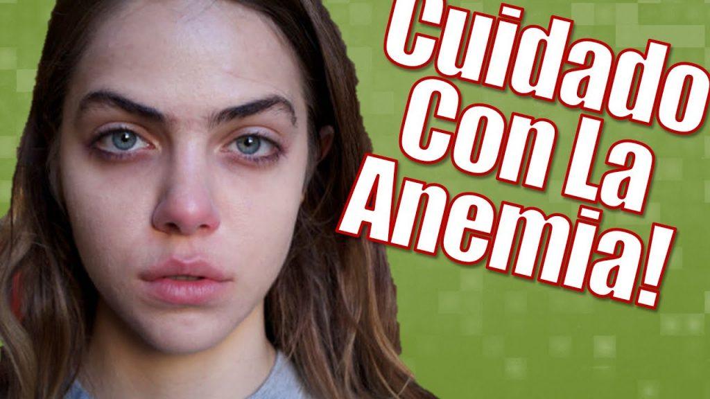 anemia síntomas y tratamiento
