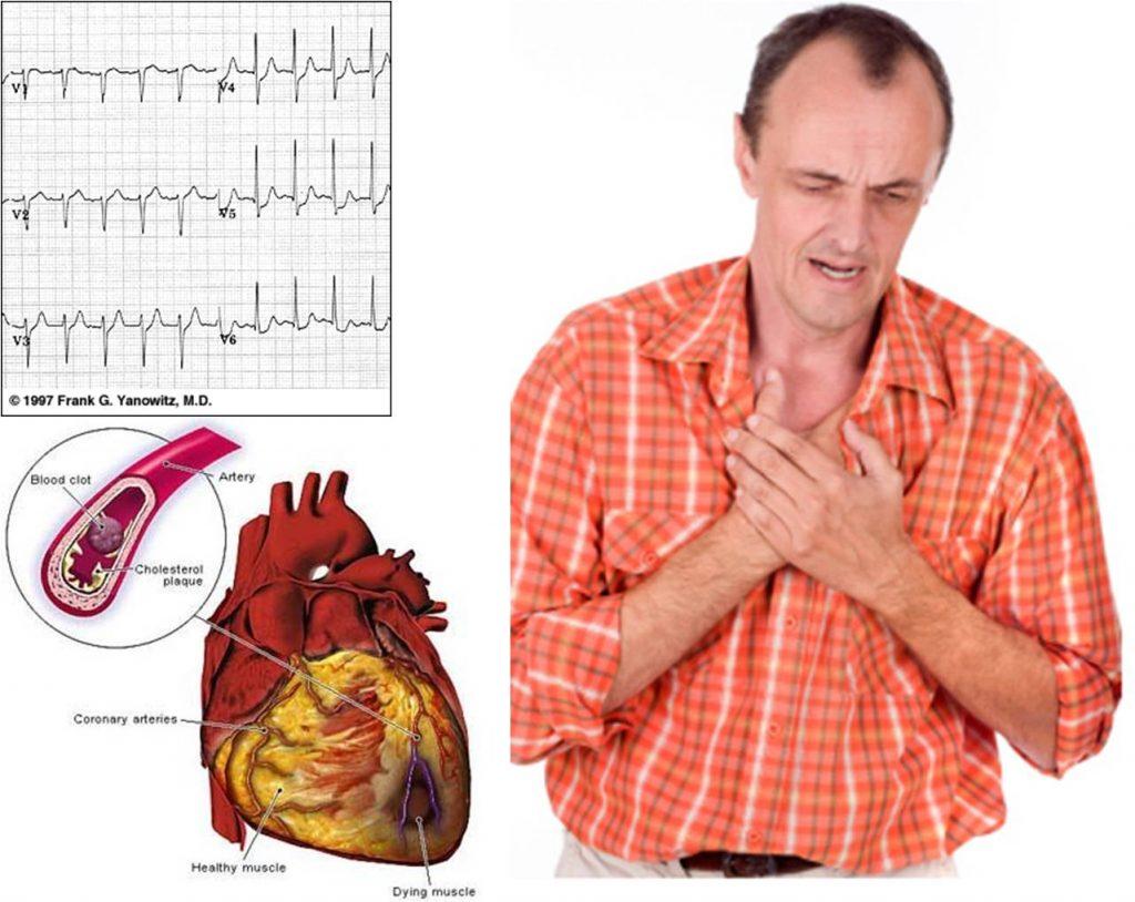 sintomas de la angina de pecho inestable