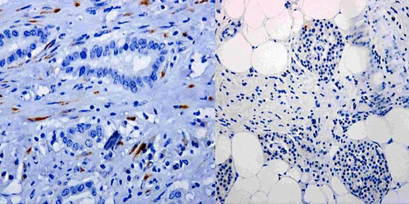 cancer de pancreas sintomas por etapas