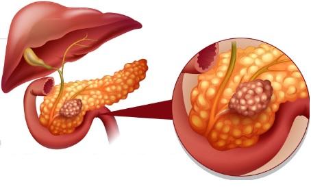 cancer de pancreas sintomas español