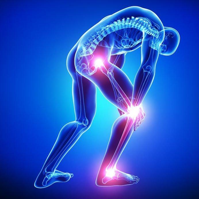 síntomas de neuralgia ciática