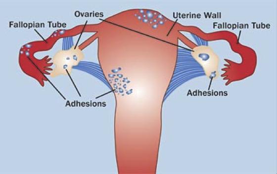 endometriosis síntomas y tratamiento