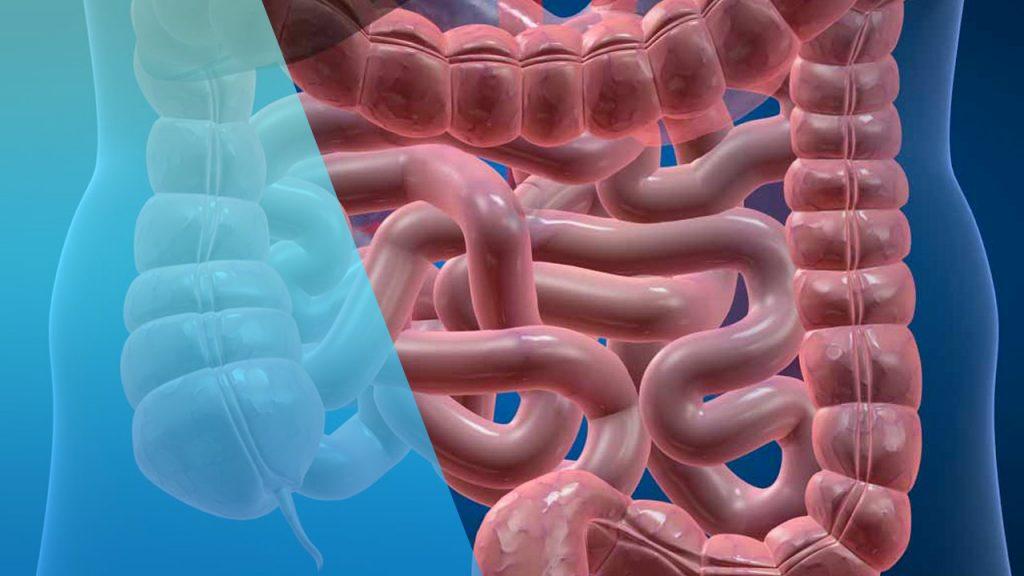 enfermedad de crohn muerte