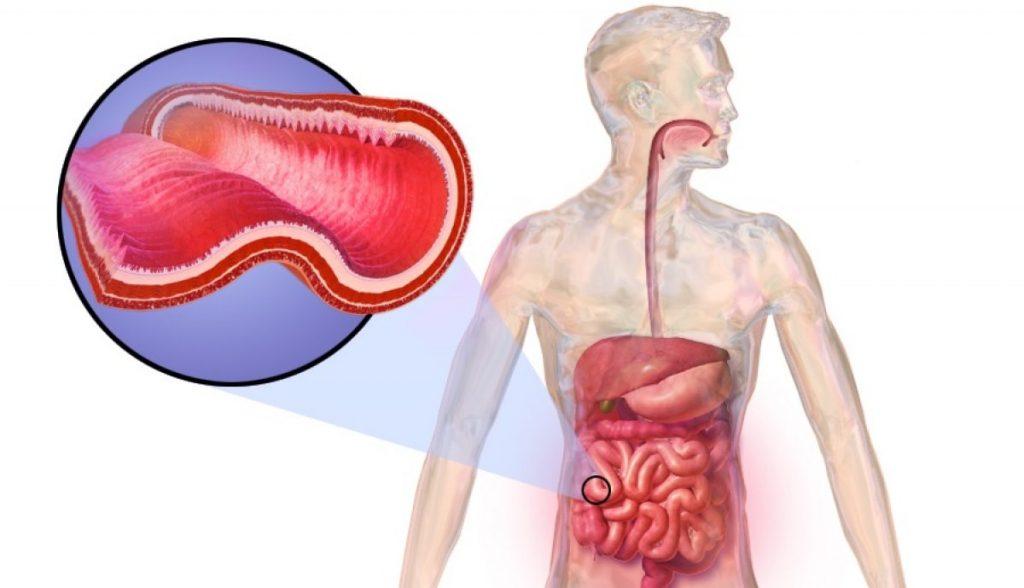 enfermedad de crohn que es