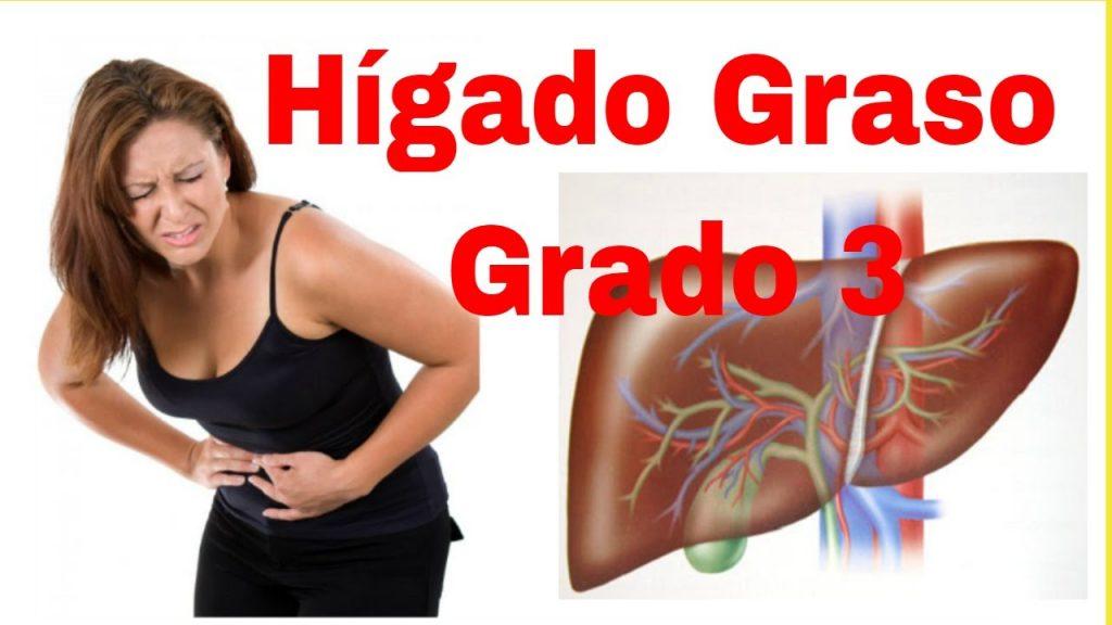 sintomas higado graso grado 3