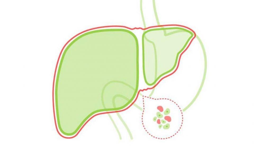 síntomas hígado graso no alcohólico