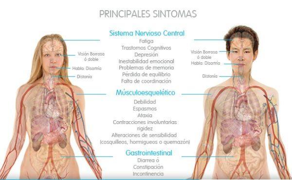 sintomas fisicos de esclerosis multiple