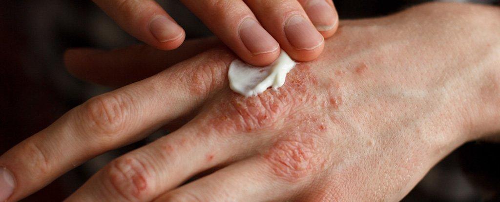sintomas de infeccion por sarna
