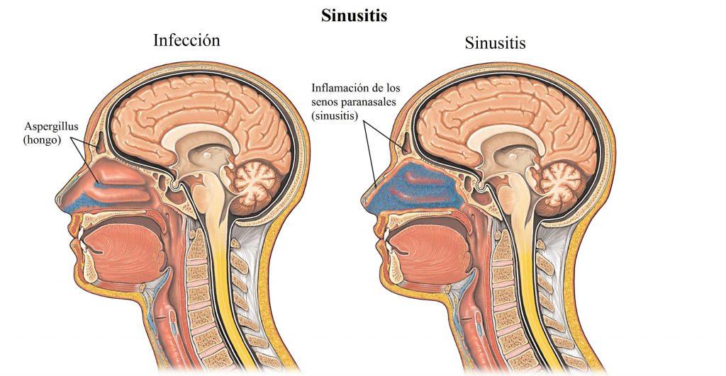 como reconocer sintomas de sinusitis