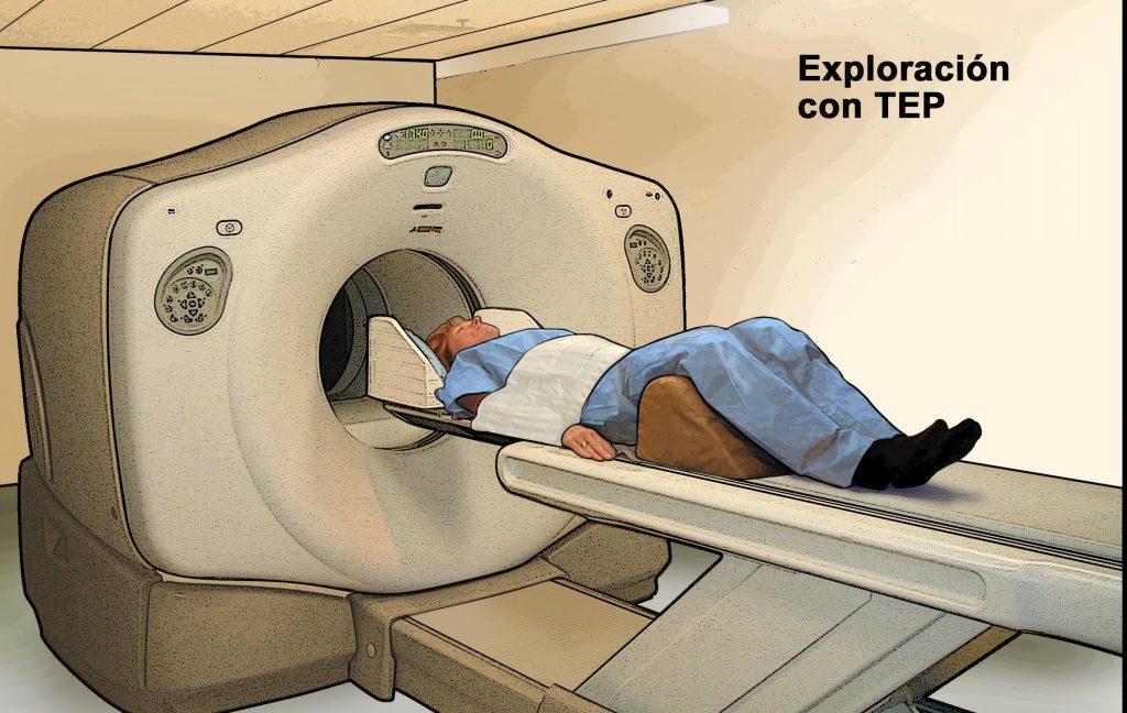 los síntomas de un tumor cerebral
