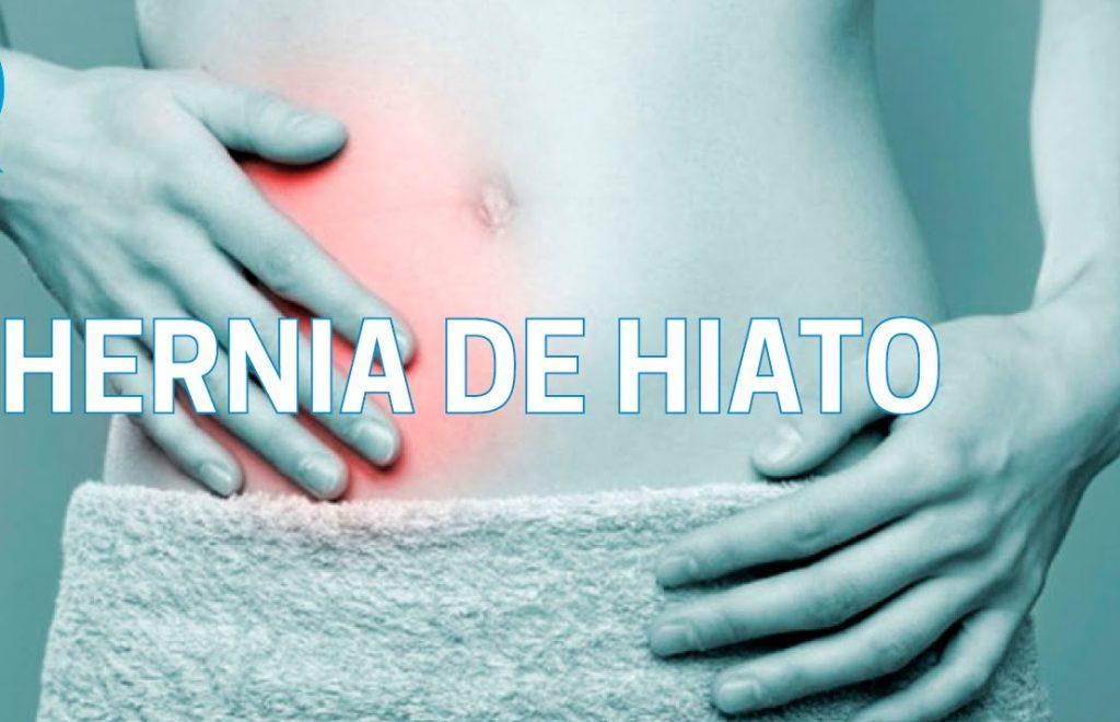 síntomas-hernia-de-hiato
