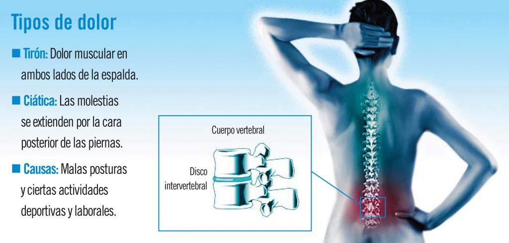 ciatica sintomas y signos