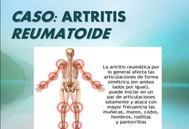 como son los sintomas de artritis reumatoide