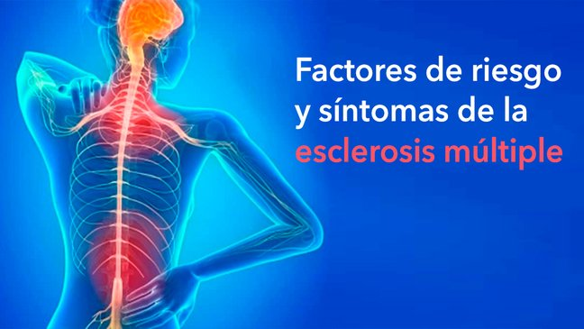 que sintomas son los de esclerosis multiple