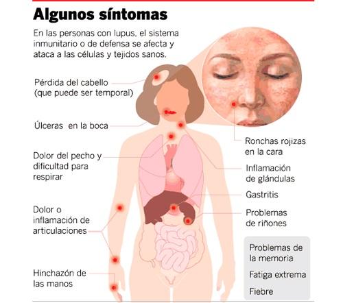 sintomas de lupus avanzado