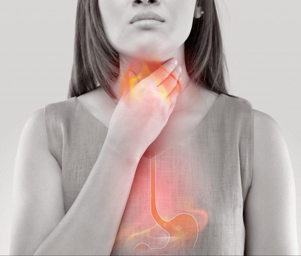 sintomas de hernia al hiato