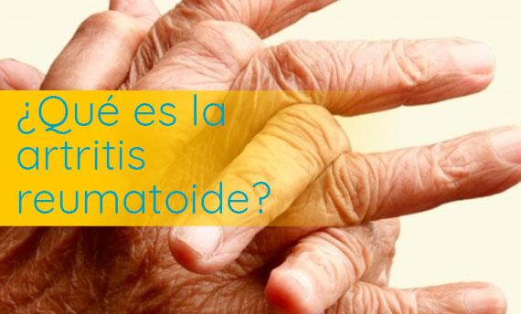 ataque de artritis reumatoide sintomas
