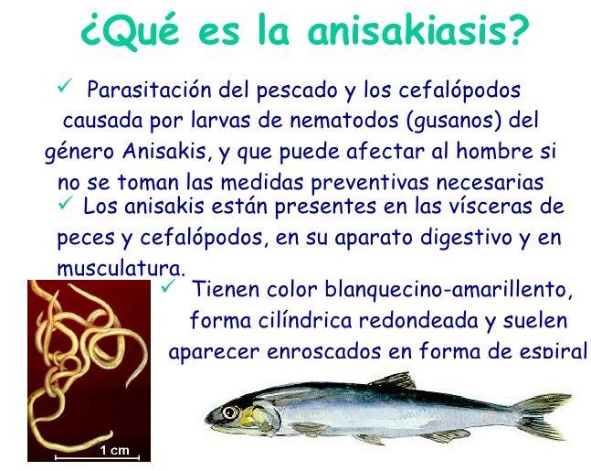 sintomas de la anisakis