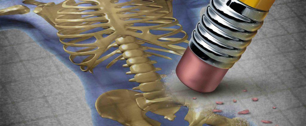 sintomas osteoporosis columna
