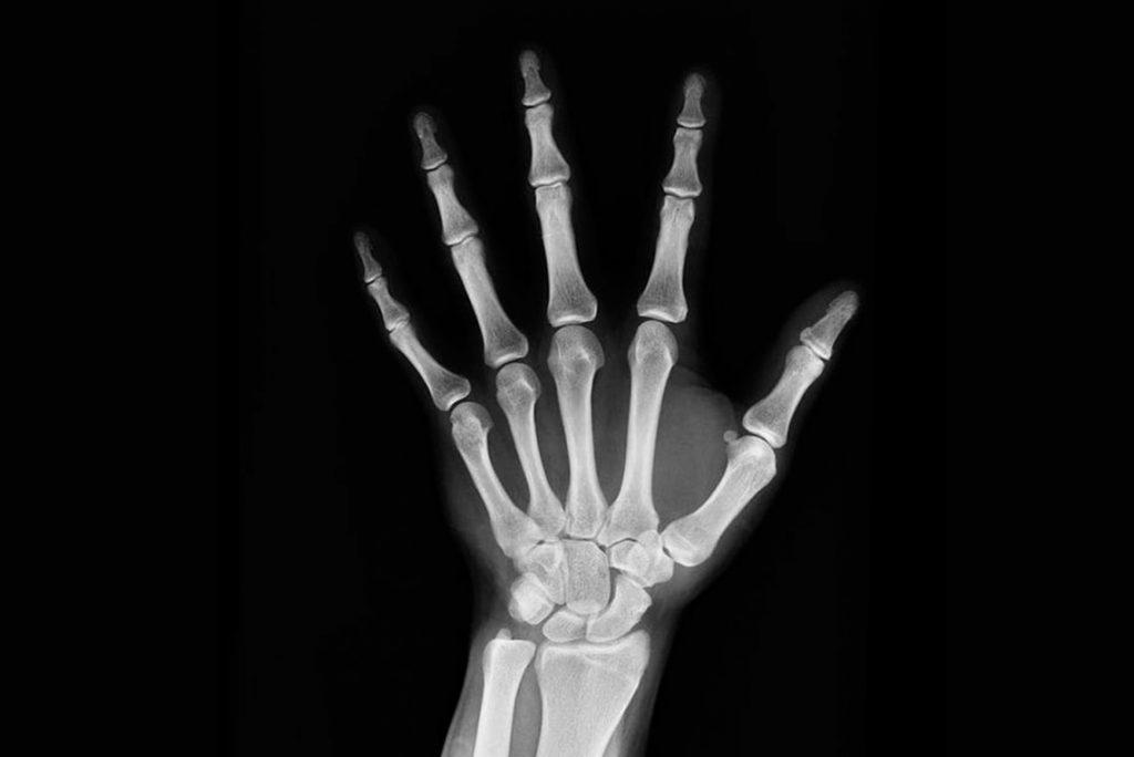 sintomas osteoporosis avanzada