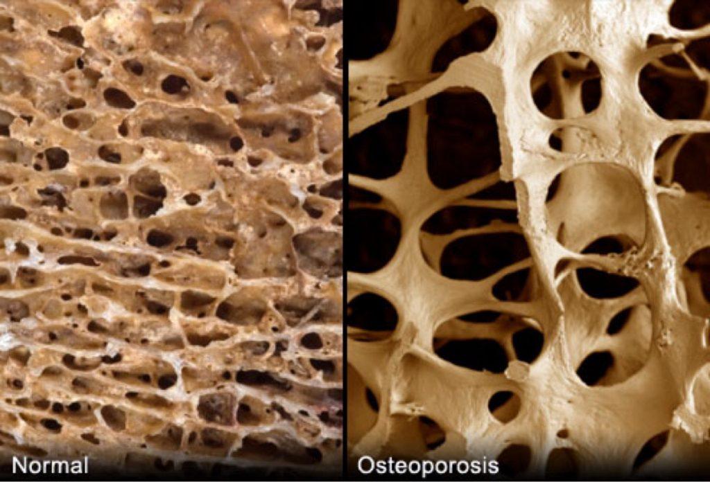 sintomas osteoporosis prematura
