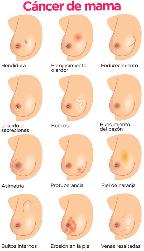 sintomas del cancer de mama cansancio