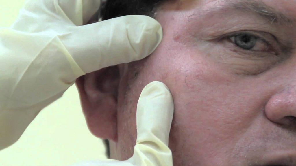 sintomas de cancer de piel en brazos
