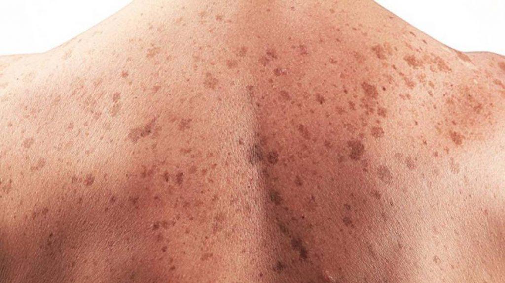 sintomas de cancer de piel avanzado
