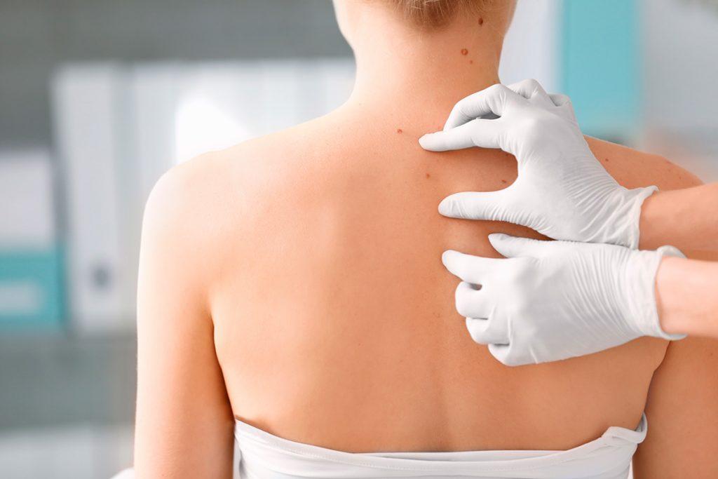 cancer de piel basocelular sintomas