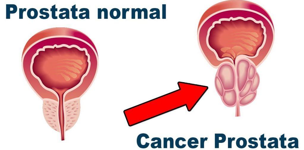 sintoma cancer de prostata