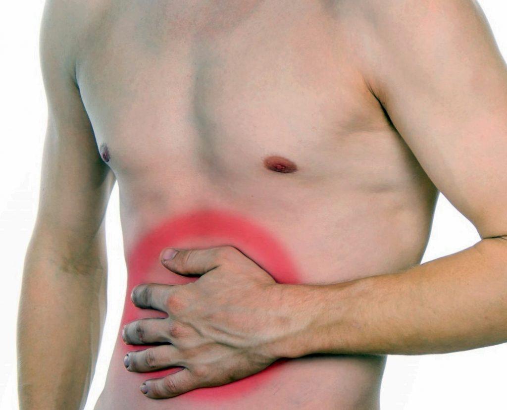 sintomas colon irritable heces amarillas