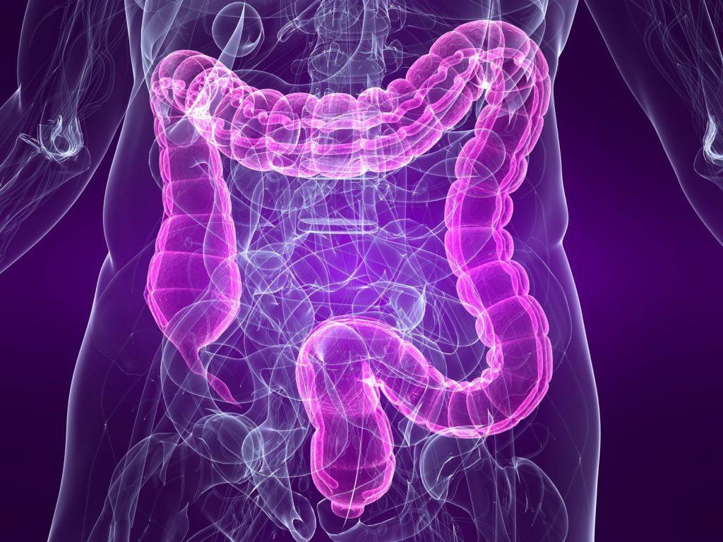 sintomas colon irritable en bebes