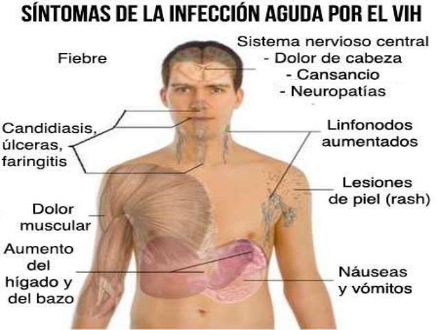 sintomas de tener vih sida