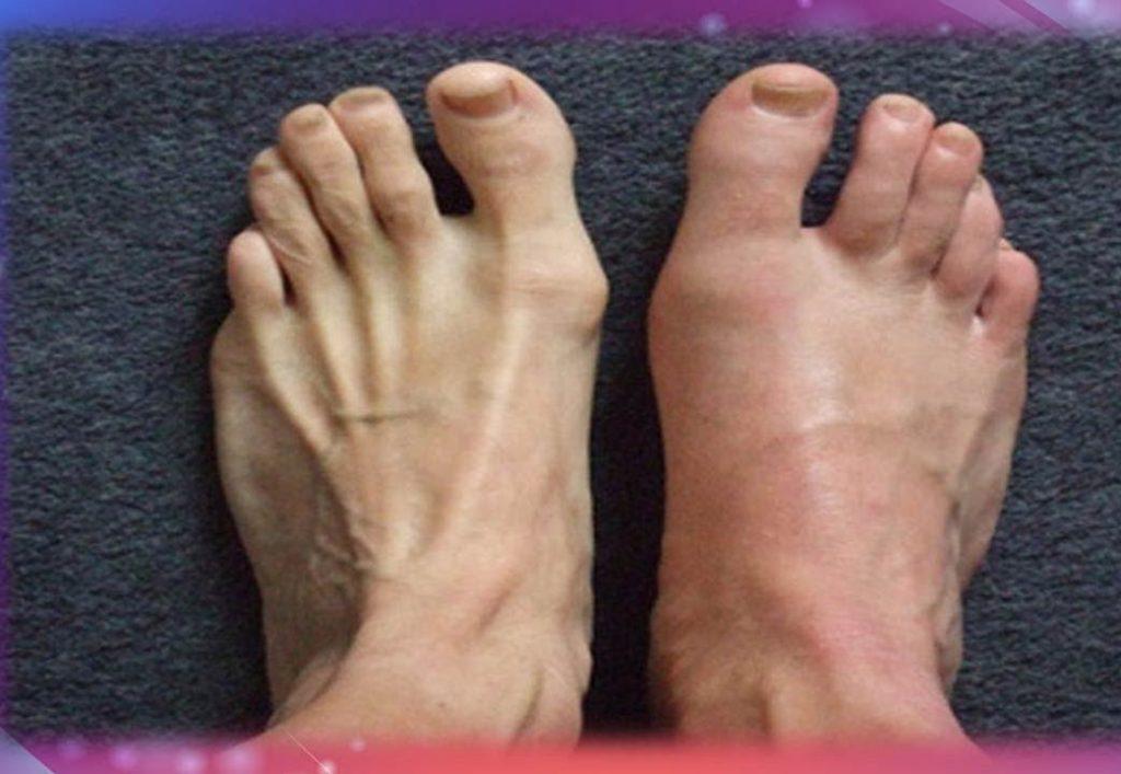 sintomas de acido urico en manos