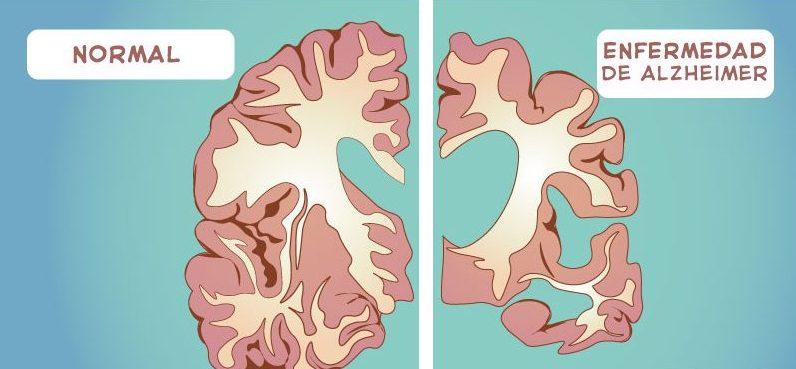síntomas de alzheimer avanzado