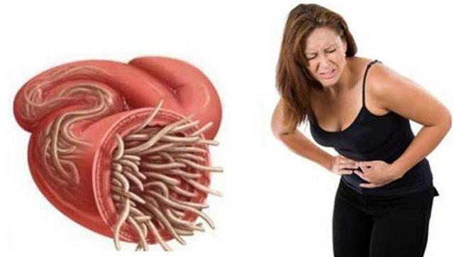 sintomas anisakis estomago