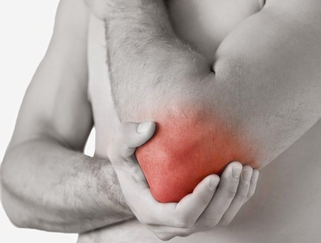 sintomas generales de artritis reumatoide