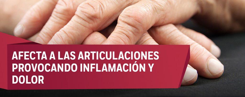 sintomas de artritis reumatoide