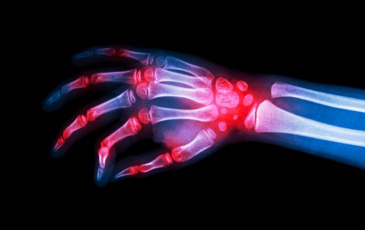 cuales son los sintomas de artritis reumatoide