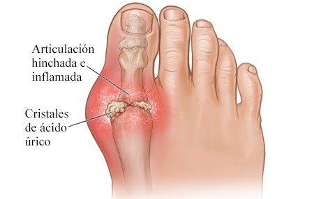cuales son los sintomas de artritis reumatoidea
